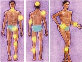 Hemofilide Kas İskelet Sorunlarına Ortopedik Yaklaşım